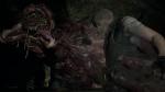 Resident Evil 2 thumb 49